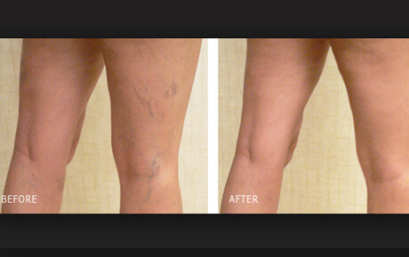 vein treatment before and after photos of legs
